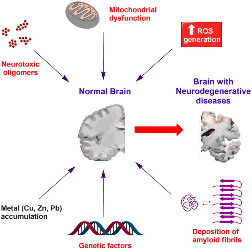 neurodegenerative-diseases